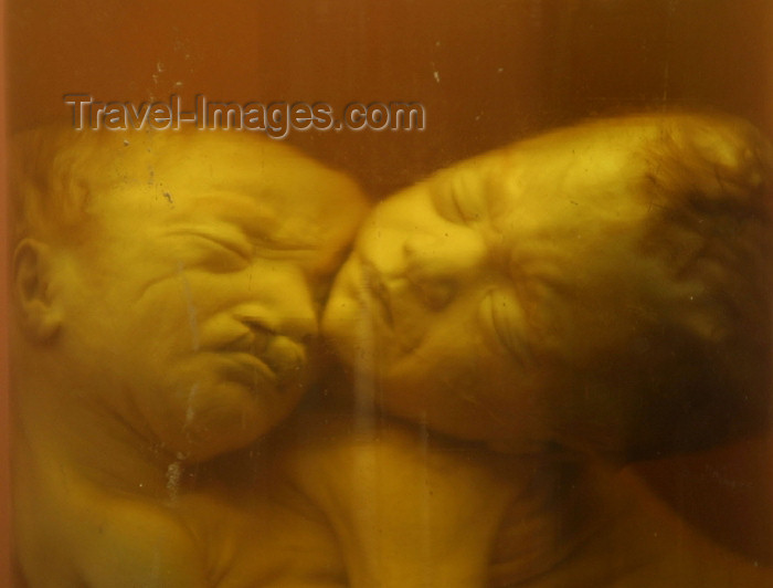 vietnam22: Vietnam - Ho Chi Minh city / Saigon: deformed stillborn children - the result of Agent Orange - War Remnants Museum (photo by Rod Eime) - (c) Travel-Images.com - Stock Photography agency - Image Bank